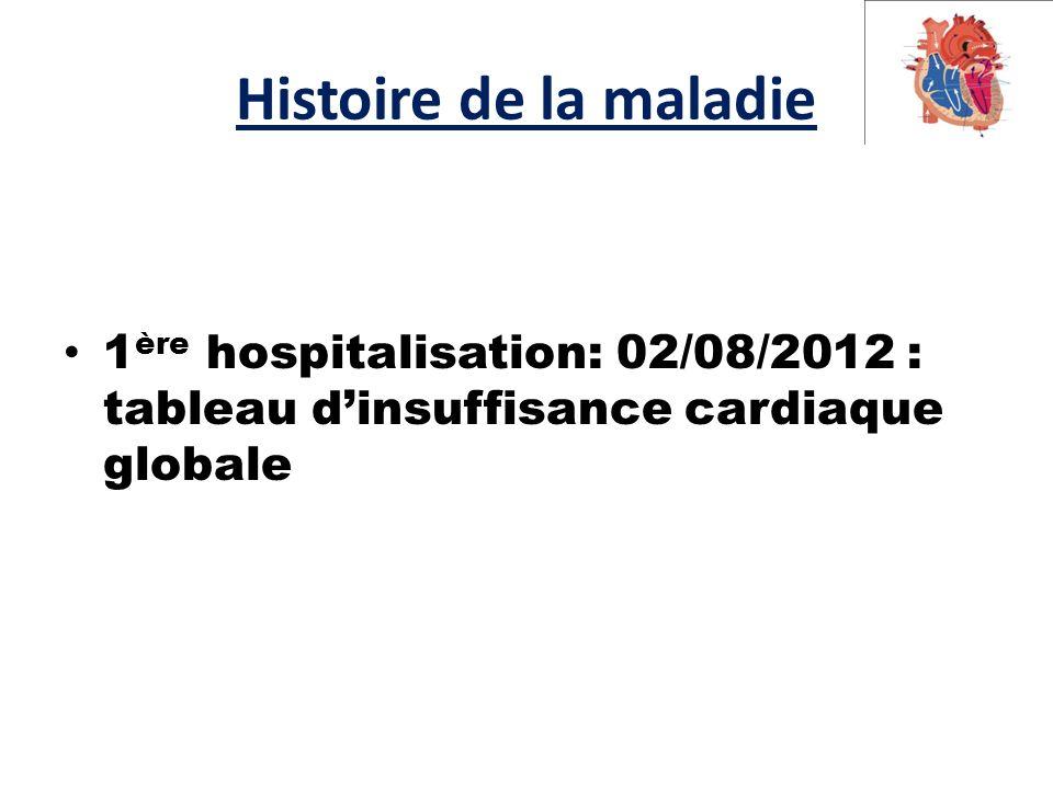 Histoire de la maladie 1 ère hospitalisation: 02/08/2012 : tableau d'insuffisance cardiaque globale