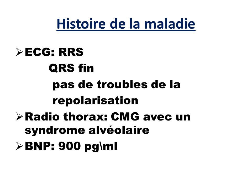 Histoire de la maladie  ECG: RRS QRS fin pas de troubles de la repolarisation  Radio thorax: CMG avec un syndrome alvéolaire  BNP: 900 pg\ml