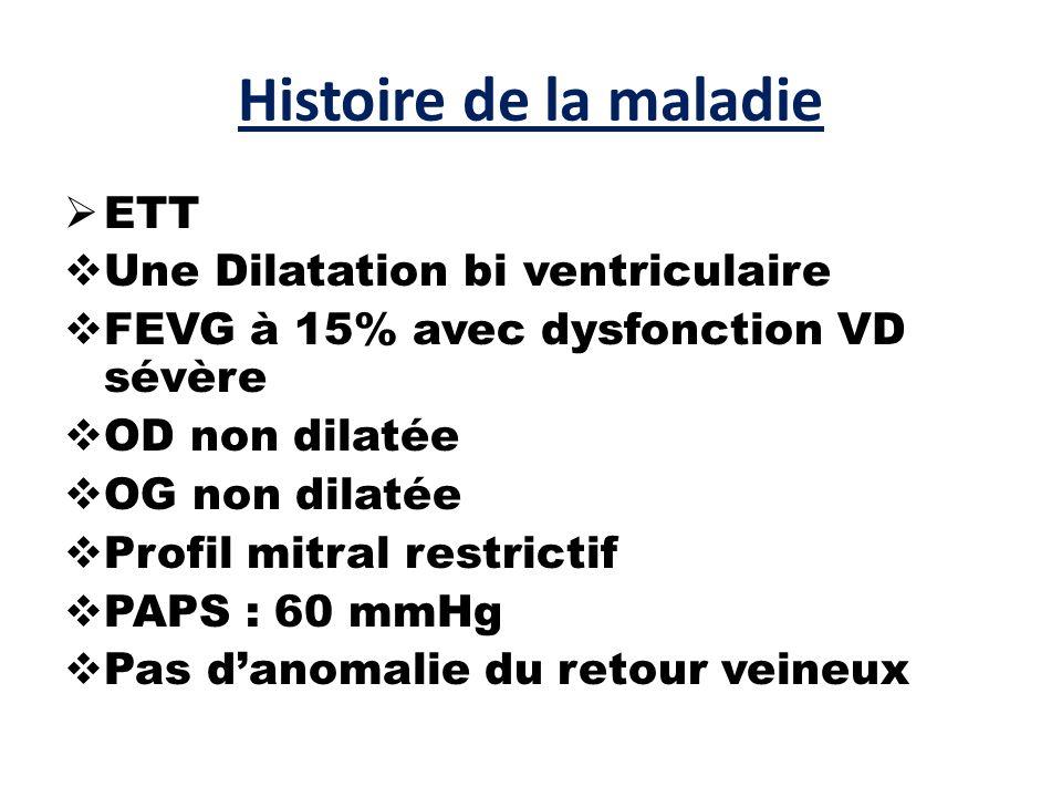Histoire de la maladie  ETT  Une Dilatation bi ventriculaire  FEVG à 15% avec dysfonction VD sévère  OD non dilatée  OG non dilatée  Profil mitral restrictif  PAPS : 60 mmHg  Pas d'anomalie du retour veineux