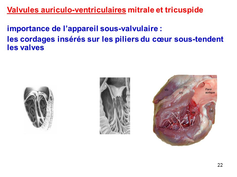 22 Valvules auriculo-ventriculaires mitrale et tricuspide importance de l'appareil sous-valvulaire : les cordages insérés sur les piliers du cœur sous-tendent les valves