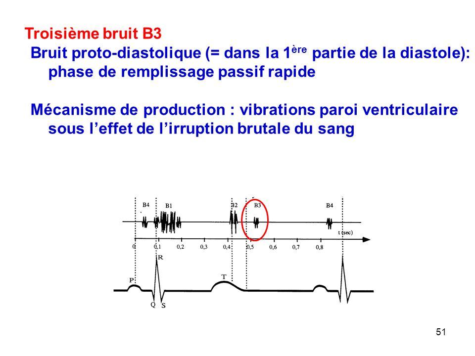 51 Troisième bruit B3 Bruit proto-diastolique (= dans la 1 ère partie de la diastole): phase de remplissage passif rapide Mécanisme de production : vibrations paroi ventriculaire sous l'effet de l'irruption brutale du sang