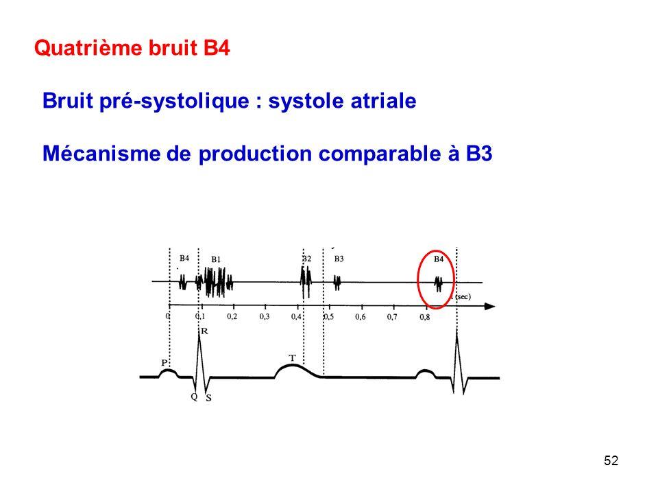 52 Quatrième bruit B4 Bruit pré-systolique : systole atriale Mécanisme de production comparable à B3