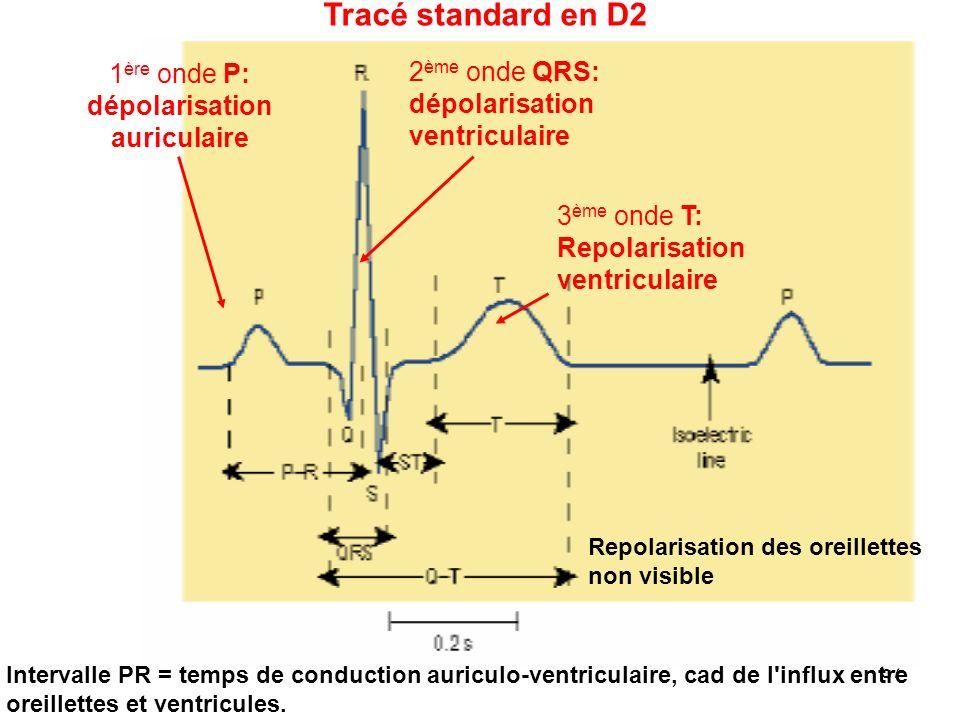 57 1 ère onde P: dépolarisation auriculaire Tracé standard en D2 2 ème onde QRS: dépolarisation ventriculaire 3 ème onde T: Repolarisation ventriculaire Repolarisation des oreillettes non visible Intervalle PR = temps de conduction auriculo-ventriculaire, cad de l influx entre oreillettes et ventricules.