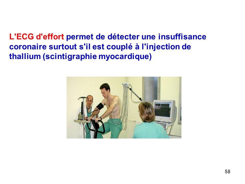 58 L ECG d effort permet de détecter une insuffisance coronaire surtout s il est couplé à l injection de thallium (scintigraphie myocardique)