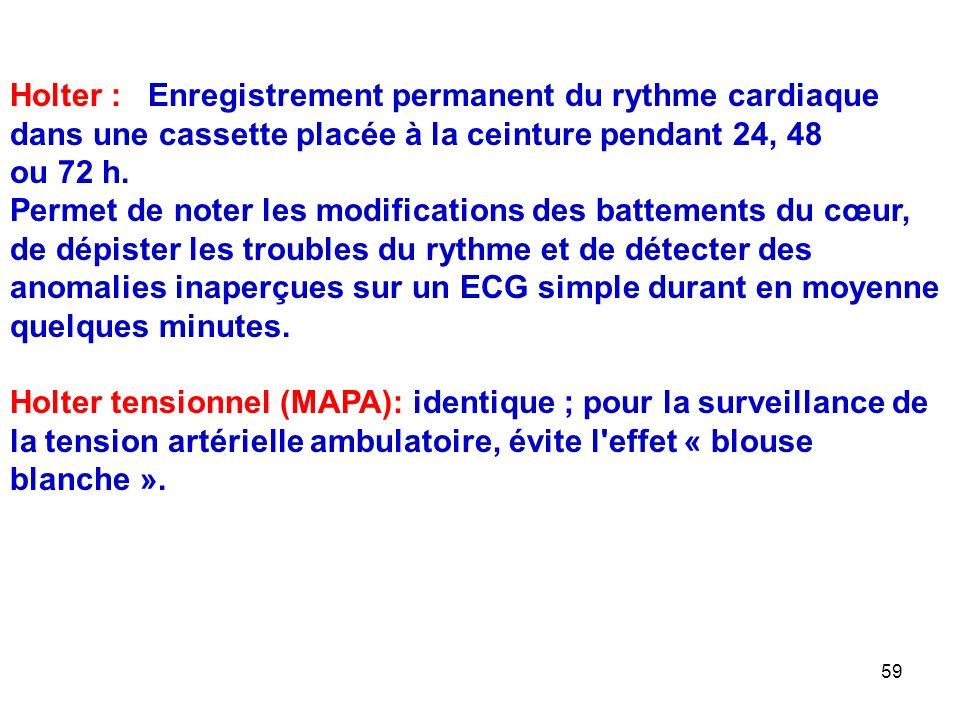 59 Holter : Enregistrement permanent du rythme cardiaque dans une cassette placée à la ceinture pendant 24, 48 ou 72 h.