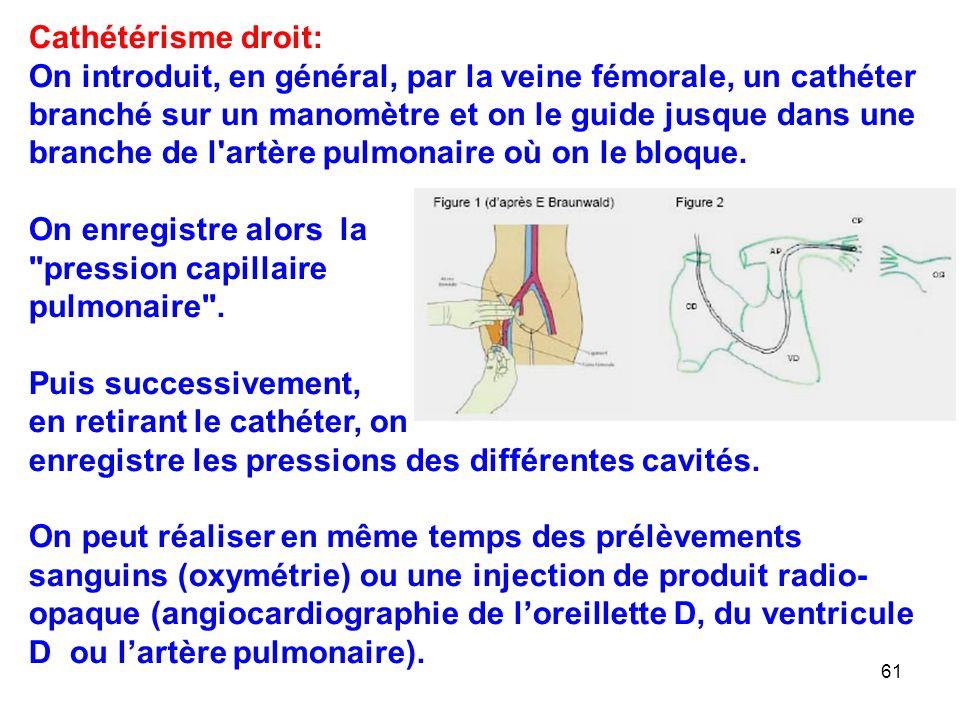61 Cathétérisme droit: On introduit, en général, par la veine fémorale, un cathéter branché sur un manomètre et on le guide jusque dans une branche de l artère pulmonaire où on le bloque.