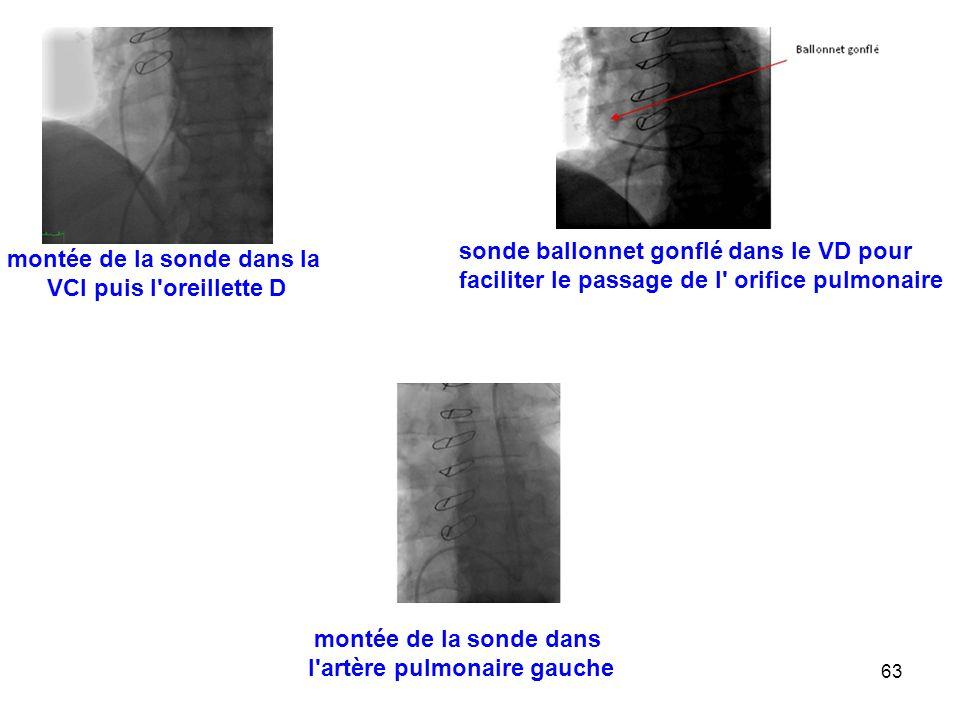 63 montée de la sonde dans la VCI puis l oreillette D sonde ballonnet gonflé dans le VD pour faciliter le passage de l orifice pulmonaire montée de la sonde dans l artère pulmonaire gauche