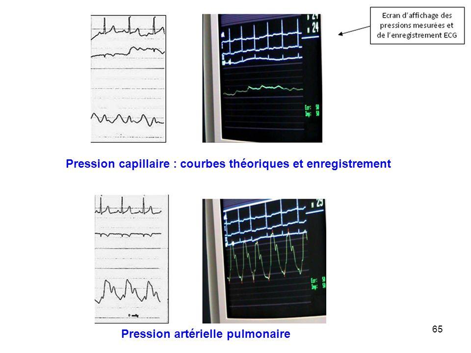 65 Pression capillaire : courbes théoriques et enregistrement Pression artérielle pulmonaire