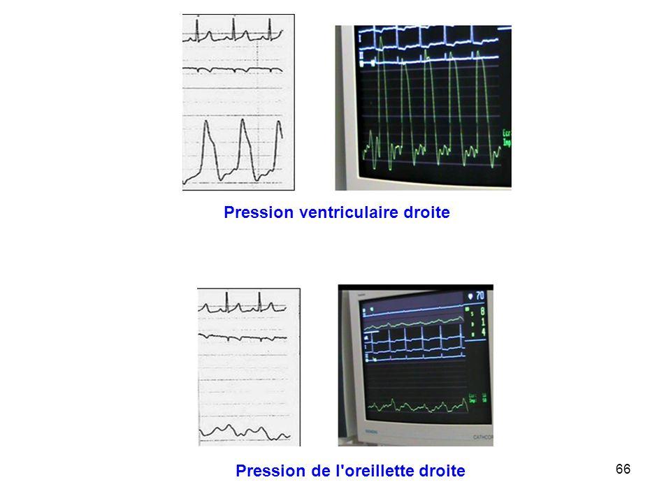 66 Pression ventriculaire droite Pression de l oreillette droite