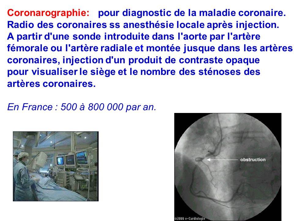 75 Coronarographie: pour diagnostic de la maladie coronaire.