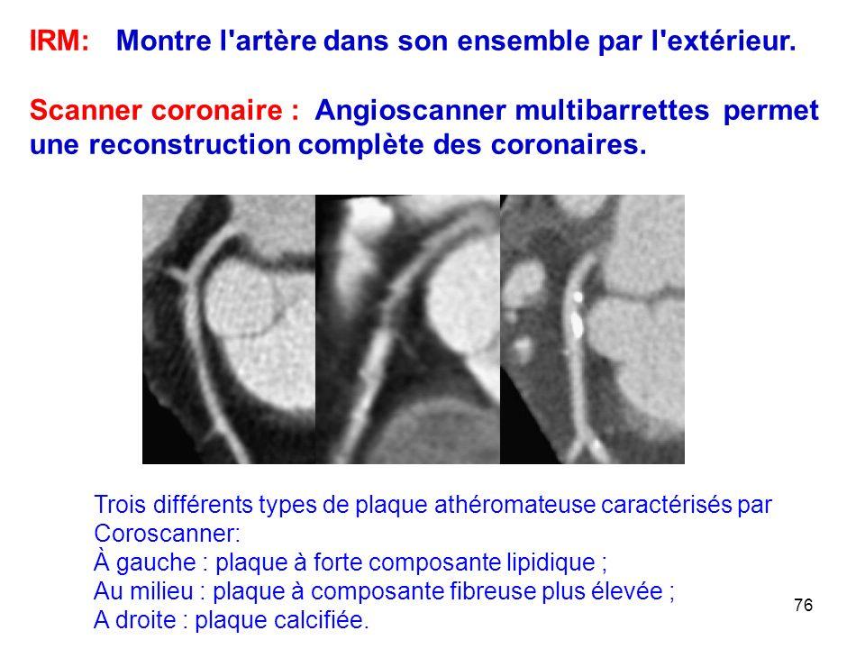 76 IRM: Montre l artère dans son ensemble par l extérieur.