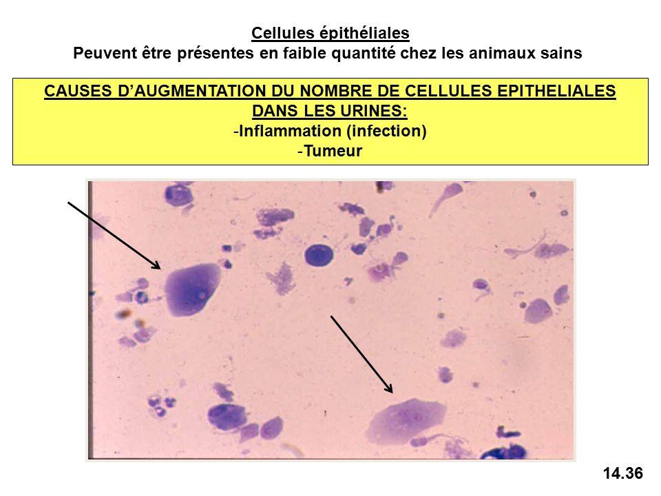 rare cellule épithéliale dans les urines