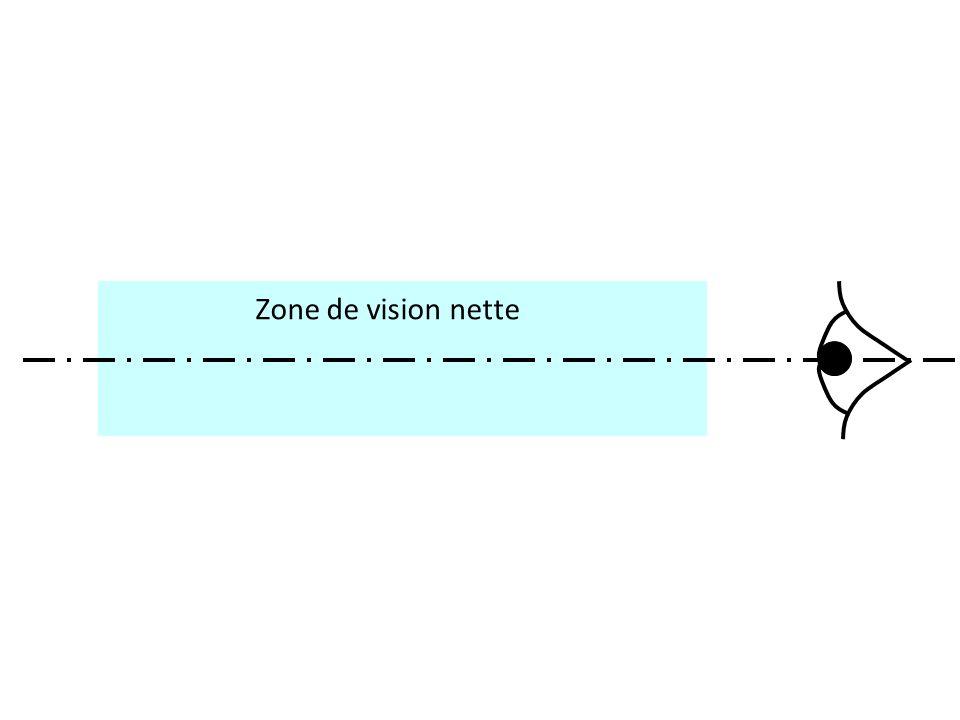 Zone de vision nette