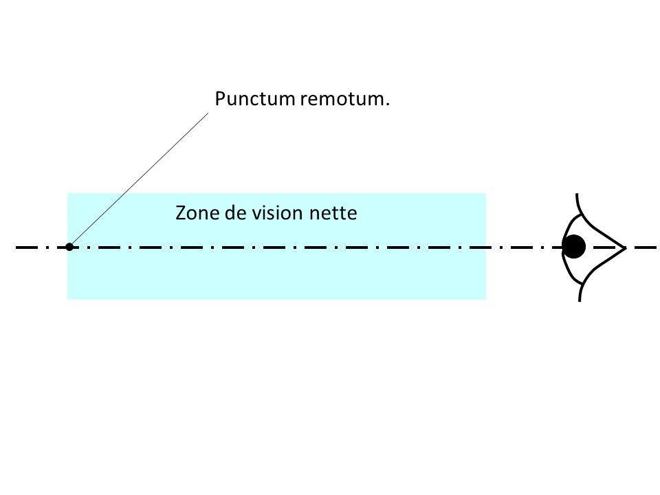 Punctum remotum.