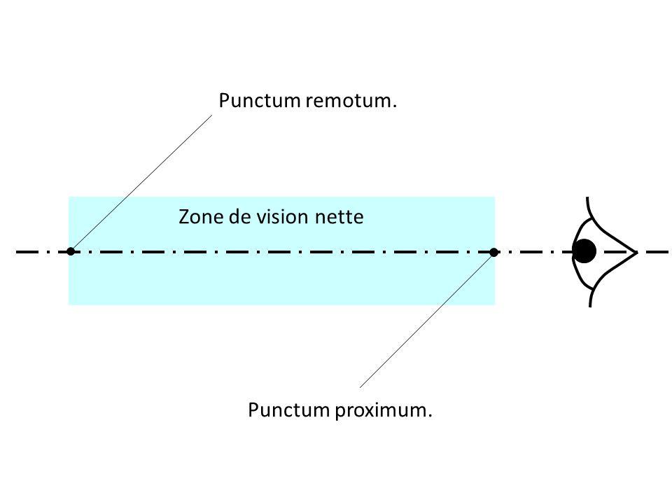 Zone de vision nette Punctum remotum. Punctum proximum.
