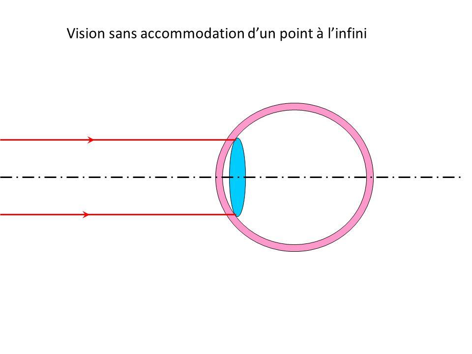 Vision sans accommodation d'un point à l'infini