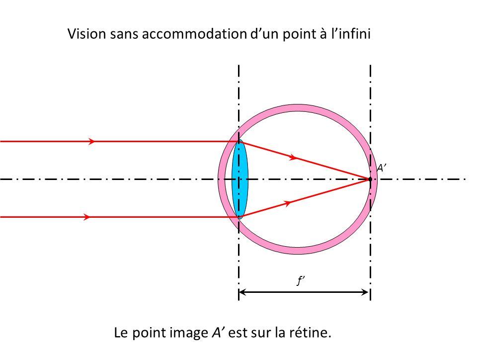 Vision sans accommodation d'un point à l'infini Le point image A' est sur la rétine. A' f'