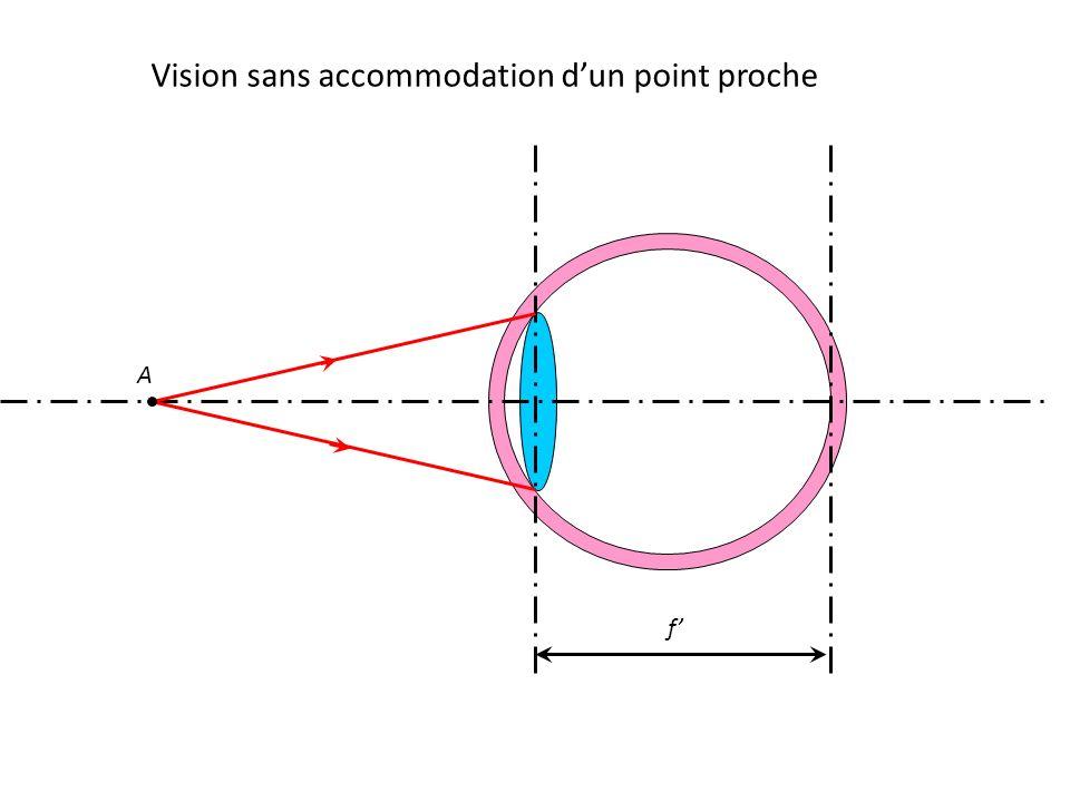 Vision sans accommodation d'un point proche f' A