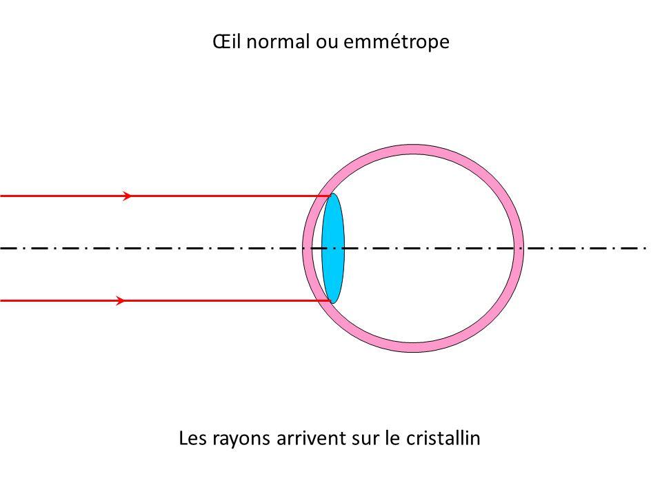 Œil normal ou emmétrope Les rayons arrivent sur le cristallin