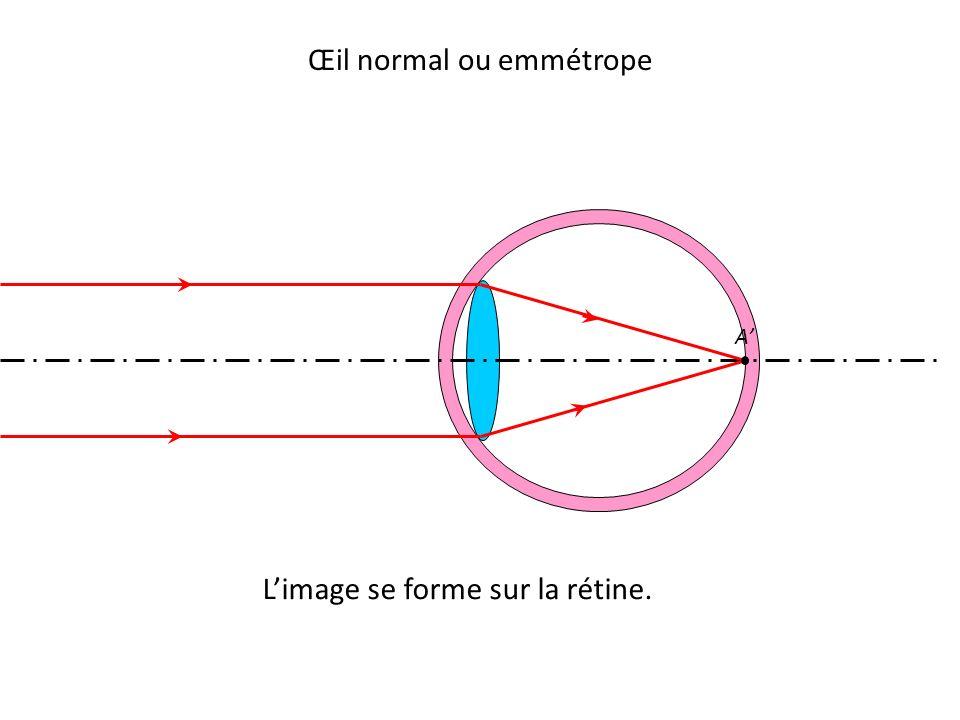 L'image se forme sur la rétine. Œil normal ou emmétrope A'