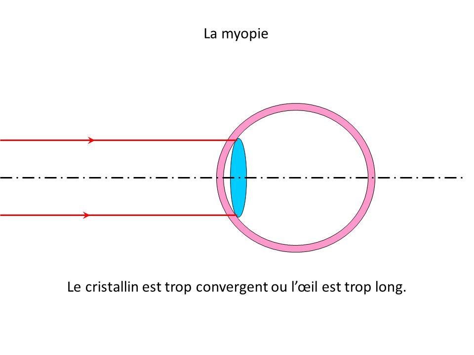 Le cristallin est trop convergent ou l'œil est trop long.
