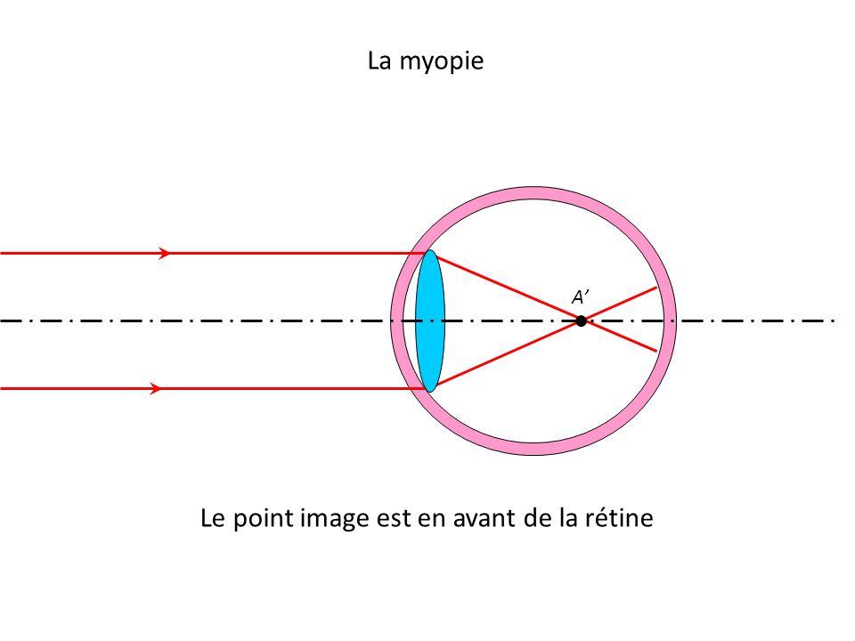 La myopie Le point image est en avant de la rétine A'