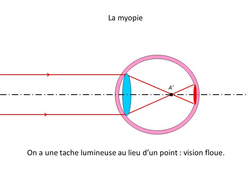 La myopie On a une tache lumineuse au lieu d'un point : vision floue. A'