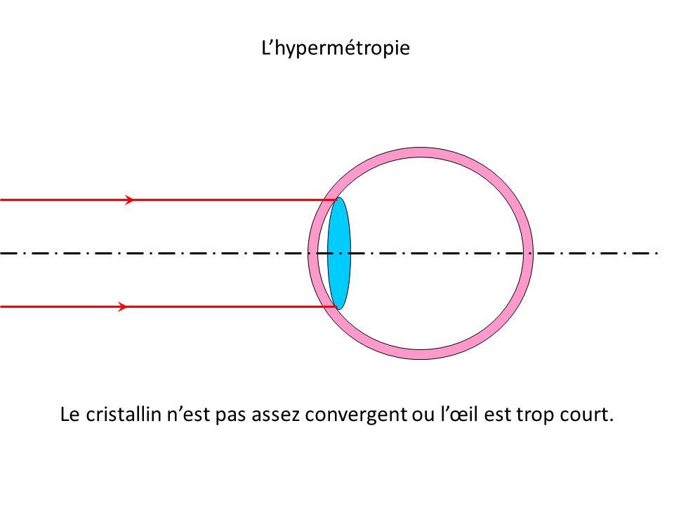 Le cristallin n'est pas assez convergent ou l'œil est trop court.