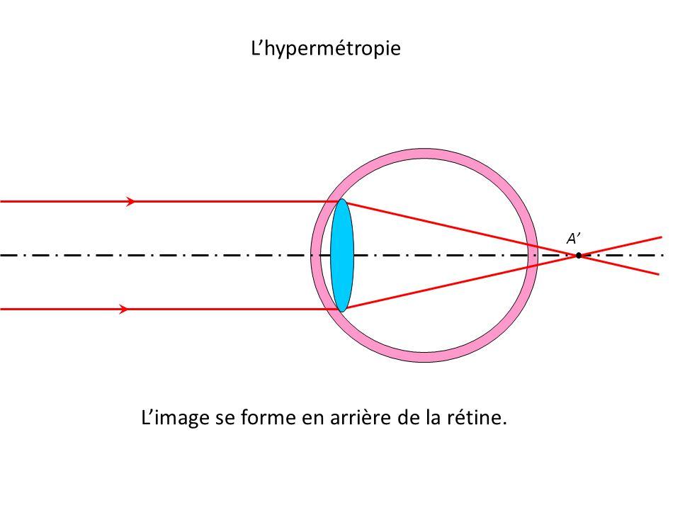 L'hypermétropie A' L'image se forme en arrière de la rétine.