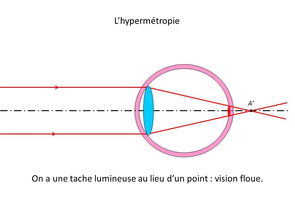 L'hypermétropie A' On a une tache lumineuse au lieu d'un point : vision floue.
