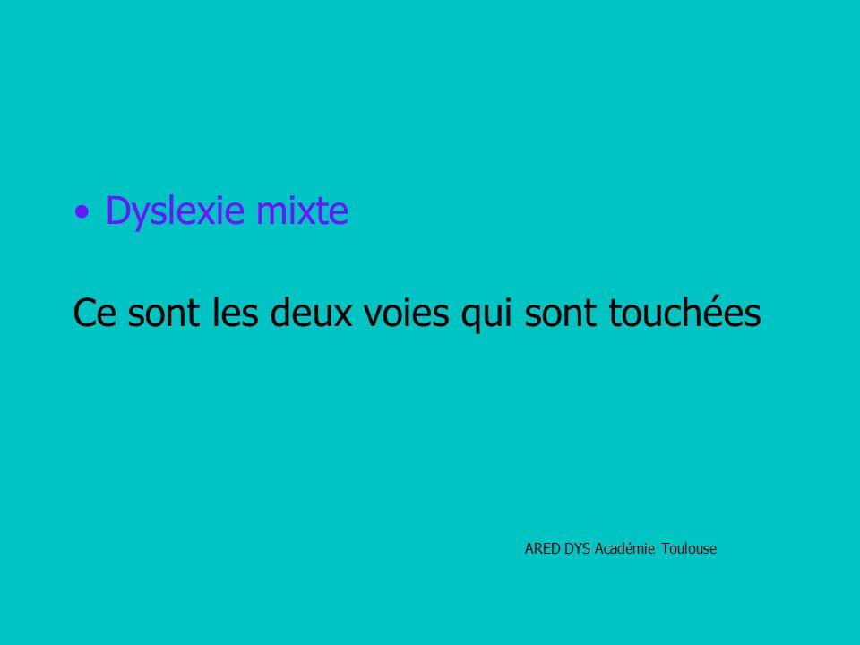 Dyslexie mixte Ce sont les deux voies qui sont touchées ARED DYS Académie Toulouse