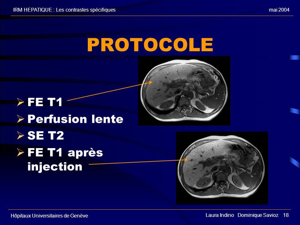 mai 2004IRM HEPATIQUE : Les contrastes spécifiques Hôpitaux Universitaires de Genève Laura Indino Dominique Savioz 18 PROTOCOLE FE T1 Perfusion lente SE T2 FE T1 après injection