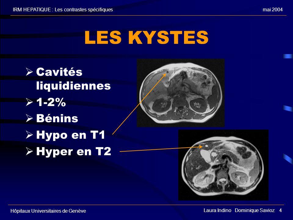 mai 2004IRM HEPATIQUE : Les contrastes spécifiques Hôpitaux Universitaires de Genève Laura Indino Dominique Savioz 4 LES KYSTES Cavités liquidiennes 1-2% Bénins Hypo en T1 Hyper en T2