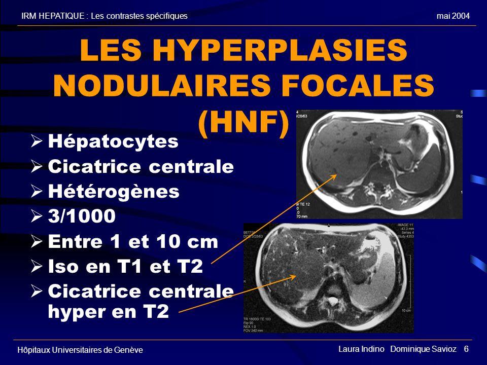 mai 2004IRM HEPATIQUE : Les contrastes spécifiques Hôpitaux Universitaires de Genève Laura Indino Dominique Savioz 6 LES HYPERPLASIES NODULAIRES FOCALES (HNF) Hépatocytes Cicatrice centrale Hétérogènes 3/1000 Entre 1 et 10 cm Iso en T1 et T2 Cicatrice centrale hyper en T2