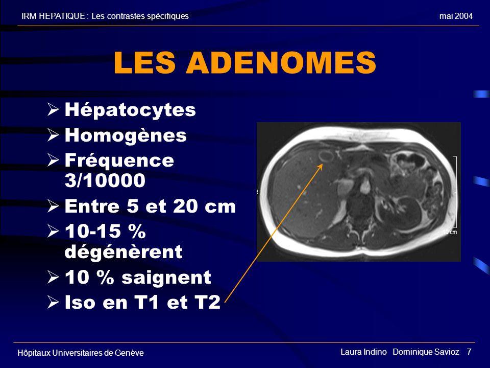 mai 2004IRM HEPATIQUE : Les contrastes spécifiques Hôpitaux Universitaires de Genève Laura Indino Dominique Savioz 7 LES ADENOMES Hépatocytes Homogènes Fréquence 3/10000 Entre 5 et 20 cm 10-15 % dégénèrent 10 % saignent Iso en T1 et T2