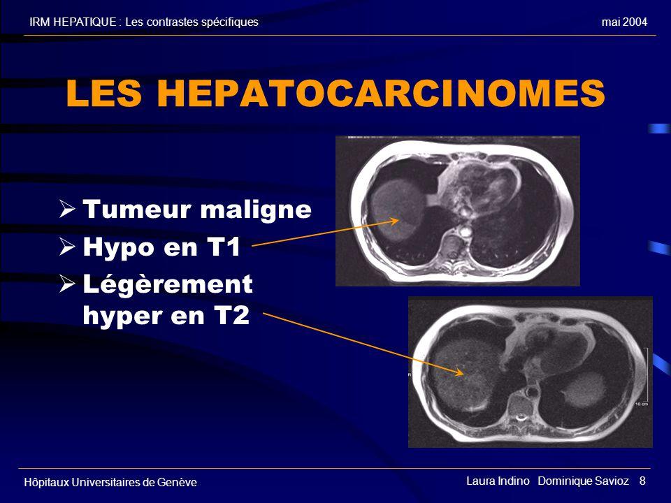 mai 2004IRM HEPATIQUE : Les contrastes spécifiques Hôpitaux Universitaires de Genève Laura Indino Dominique Savioz 8 LES HEPATOCARCINOMES Tumeur maligne Hypo en T1 Légèrement hyper en T2