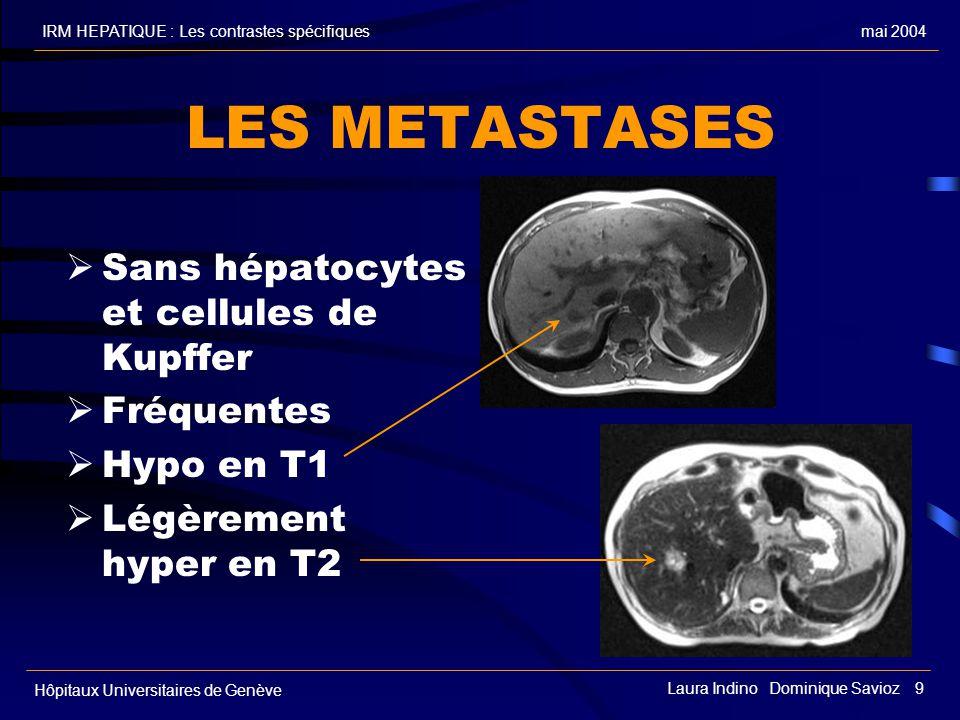 mai 2004IRM HEPATIQUE : Les contrastes spécifiques Hôpitaux Universitaires de Genève Laura Indino Dominique Savioz 9 LES METASTASES Sans hépatocytes et cellules de Kupffer Fréquentes Hypo en T1 Légèrement hyper en T2