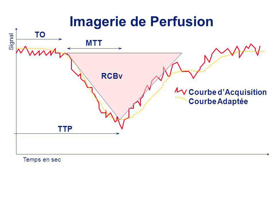 Imagerie de Perfusion TO TTP MTT Courbe dAcquisition Courbe Adaptée Temps en sec Signal RCBv