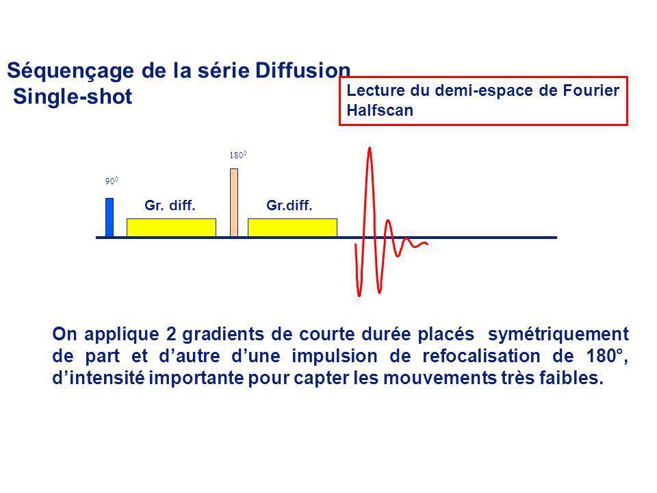Séquençage de la série Diffusion Single-shot Gr.diff. 90 0 180 0 Lecture du demi-espace de Fourier Halfscan On applique 2 gradients de courte durée pl