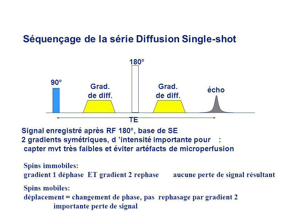 Signal enregistré après RF 180°, base de SE 2 gradients symétriques, d intensité importante pour : capter mvt très faibles et éviter artéfacts de microperfusion Spins immobiles: gradient 1 déphase ET gradient 2 rephase aucune perte de signal résultant TE Grad.
