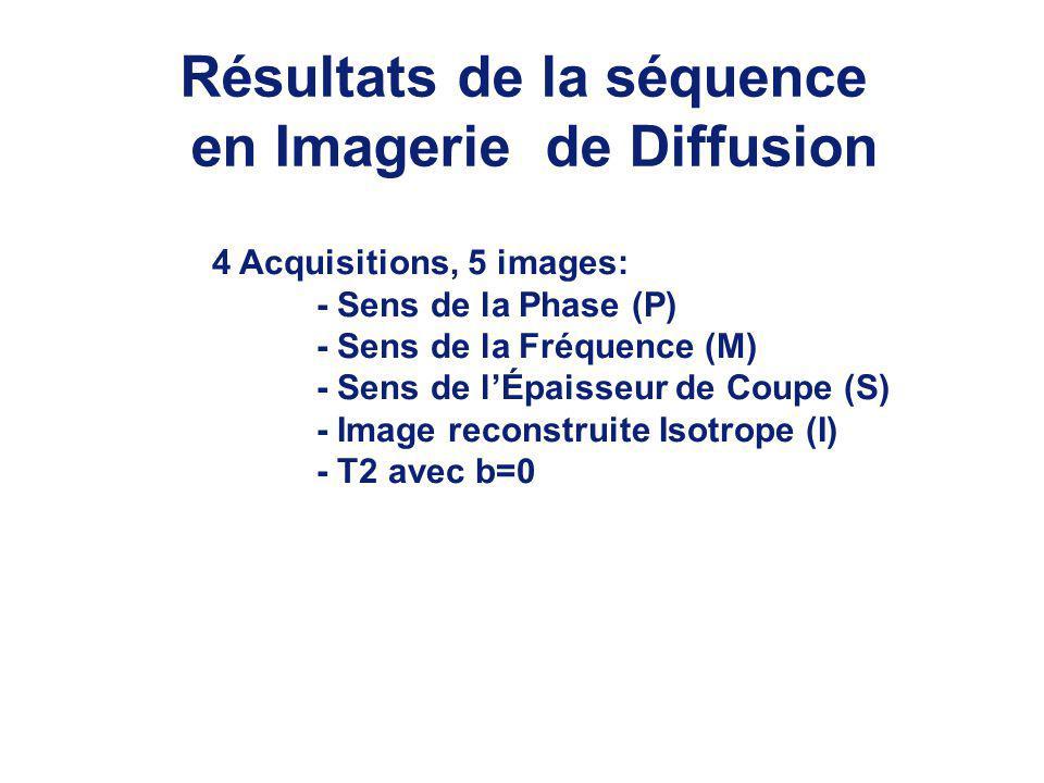 Résultats de la séquence en Imagerie de Diffusion 4 Acquisitions, 5 images: - Sens de la Phase (P) - Sens de la Fréquence (M) - Sens de lÉpaisseur de Coupe (S) - Image reconstruite Isotrope (I) - T2 avec b=0
