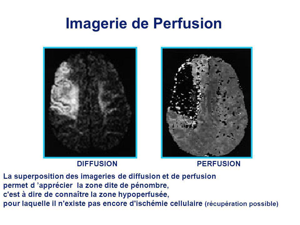 Imagerie de Perfusion DIFFUSIONPERFUSION La superposition des imageries de diffusion et de perfusion permet d apprécier la zone dite de pénombre, c est à dire de connaître la zone hypoperfusée, pour laquelle il n existe pas encore d ischémie cellulaire (récupération possible)