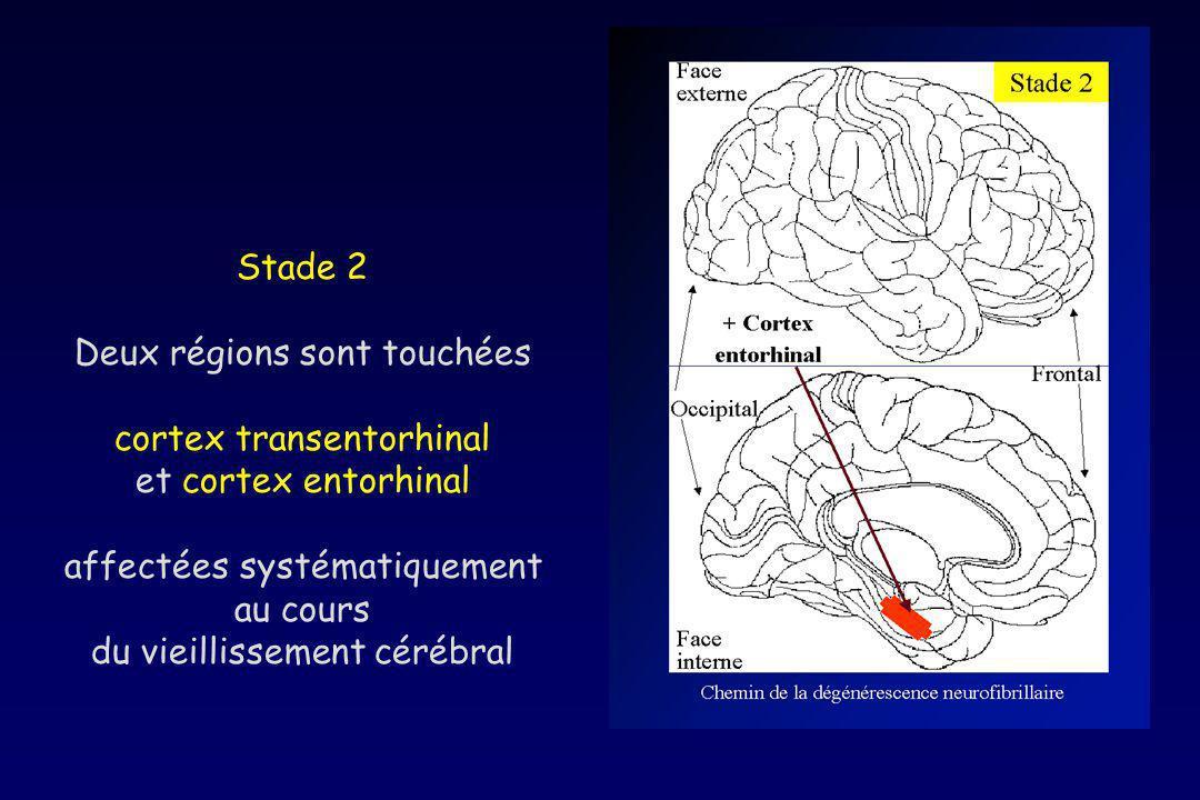 Stade 2 Deux régions sont touchées cortex transentorhinal et cortex entorhinal affectées systématiquement au cours du vieillissement cérébral