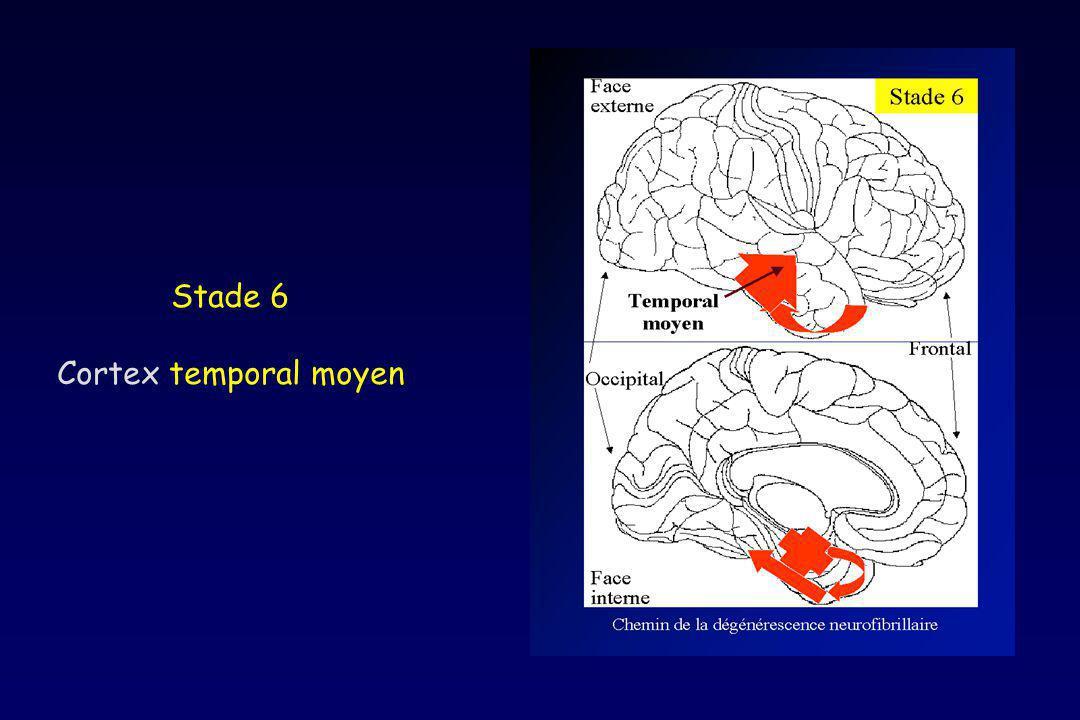 Stade 6 Cortex temporal moyen