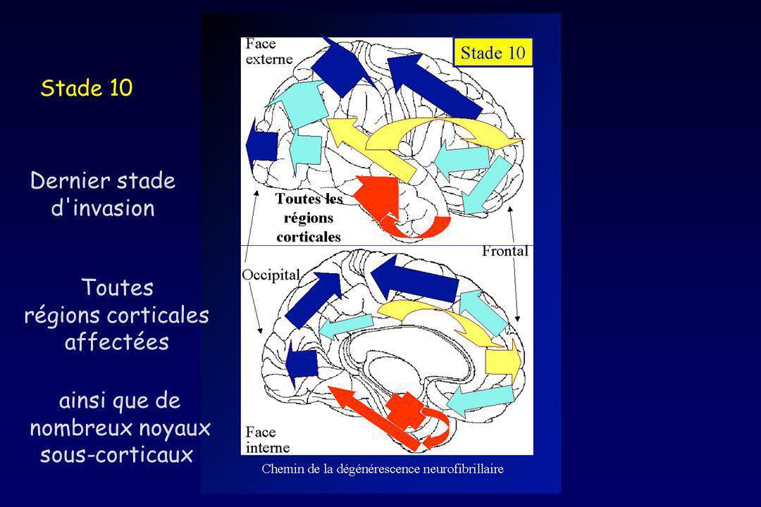 Stade 10 Dernier stade d'invasion Toutes régions corticales affectées ainsi que de nombreux noyaux sous-corticaux