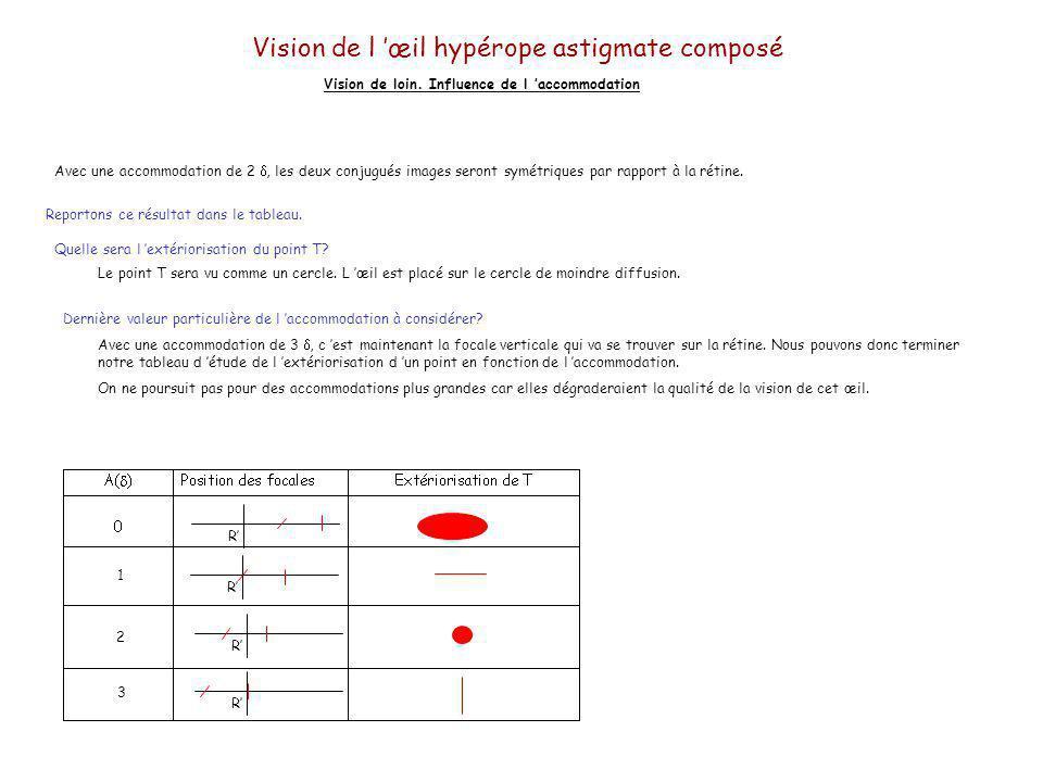 Vision de l œil hypérope astigmate composé Vision de loin. Influence de l accommodation RRRR Méridien horizontal[R] F H H H [P][P] [R] F V Méridien ve