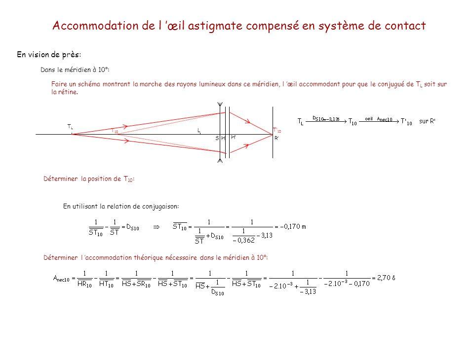 En vision de près: Dans le méridien à 100°: TLTL LH H R T 100 T 10 Faire un schéma montrant la marche des rayons lumineux dans ce méridien, l œil accommodant pour que le conjugué de T L soit sur la rétine.