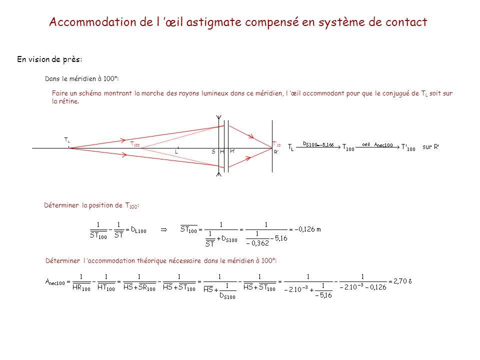 En vision de près: Dans le méridien à 100°: TLTL LH H R T 100 T 10 Faire un schéma montrant la marche des rayons lumineux dans ce méridien, l œil acco