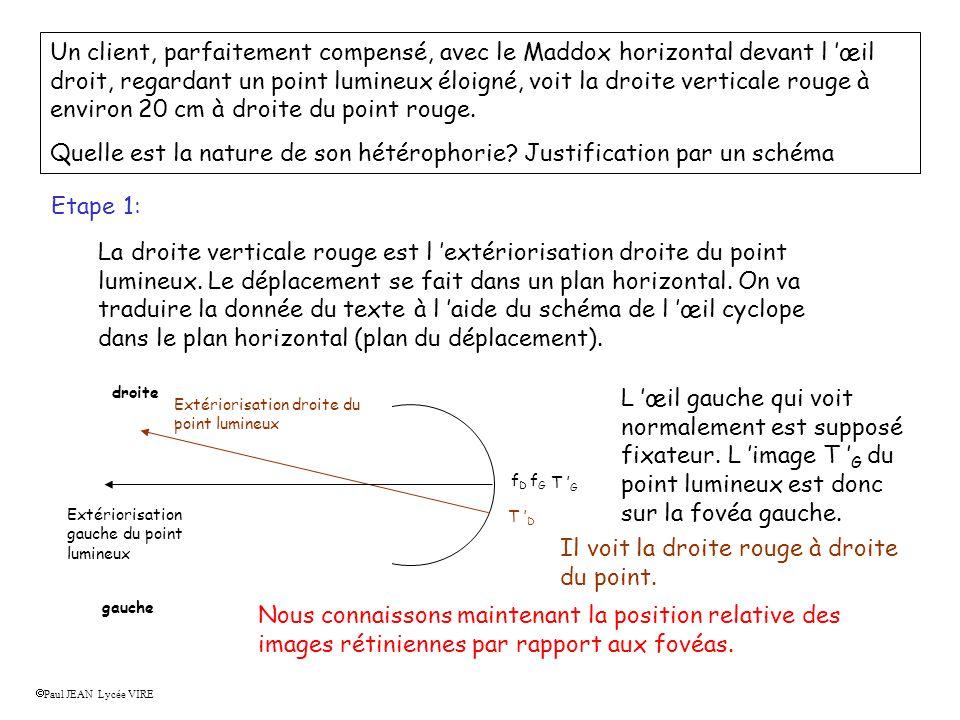 Un client, parfaitement compensé, avec le Maddox horizontal devant l œil droit, regardant un point lumineux éloigné, voit la droite verticale rouge à