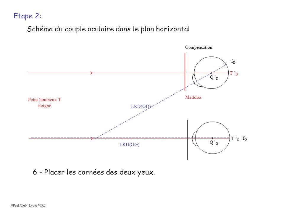 Etape 2: Schéma du couple oculaire dans le plan horizontal 1 - Placer les compensations s il y en a. Compensation 2- placer le Maddox (impératif) car
